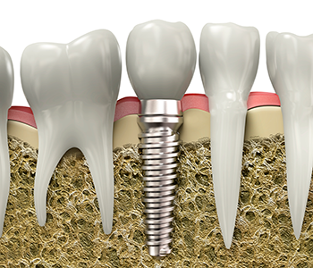 Burlington patients learn the advantages of dental implants