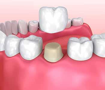 Benefits of dental crowns - dental crowns treatment in Aldershot