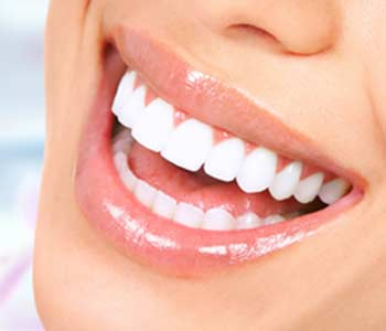 At-Home Whitening in Aldershot area