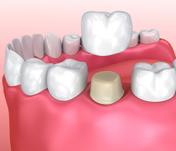 Why do I need a dental crown in Burlington area