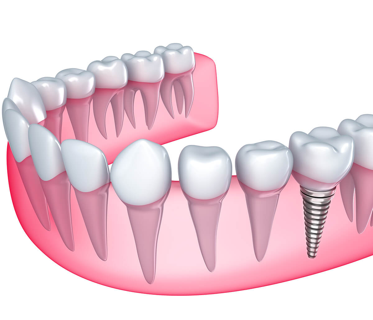 Tips to Minimize Risk with Dental Implants in Ontario Canada Area