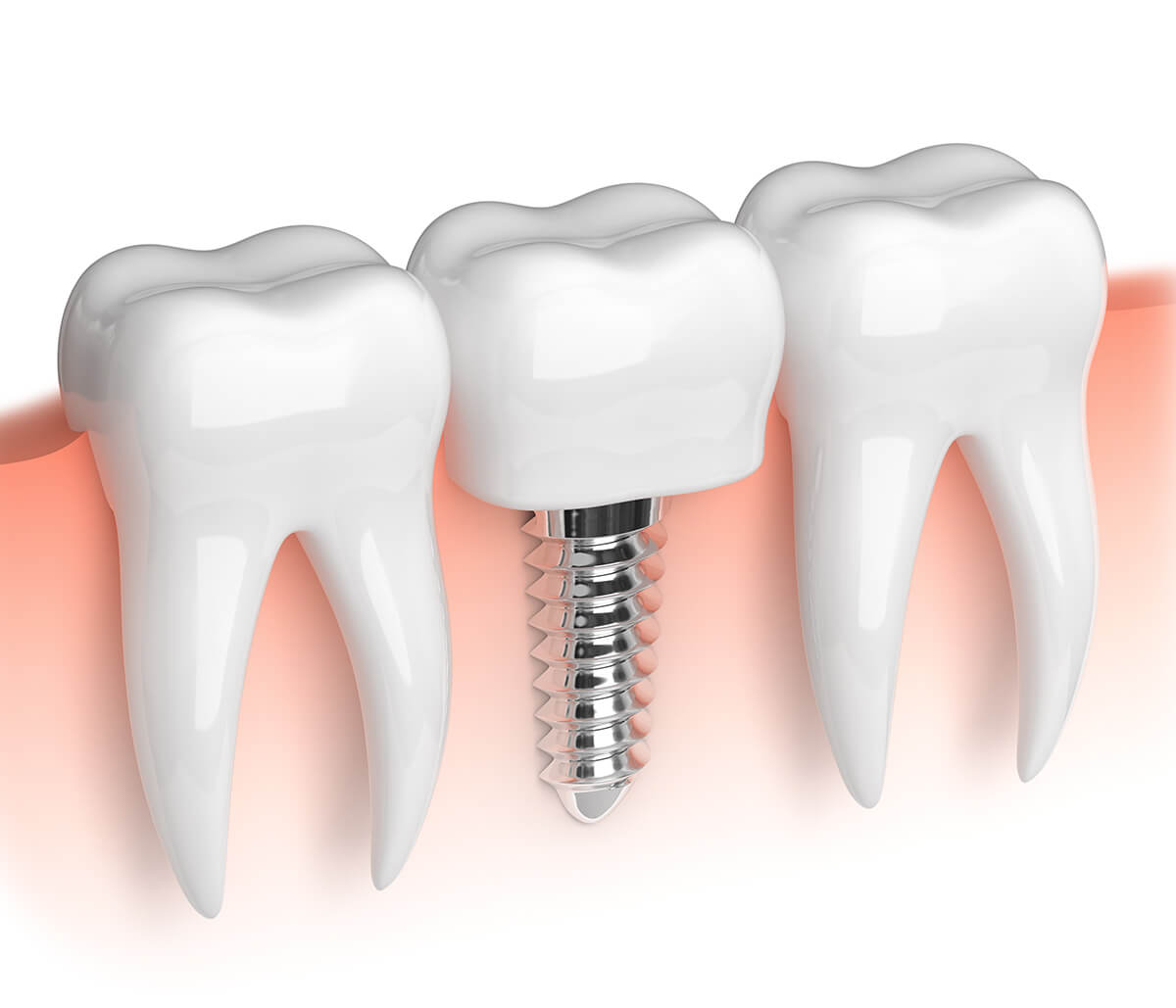 Where Can I Find a Dentist for Tooth Implants in Burlington, ON Area?