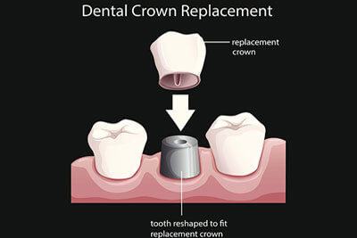 Dental Crown Replacement in Burlington ON