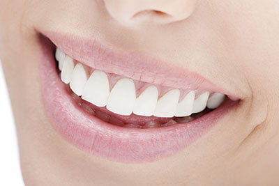 Teeth Whitening in Burlington ON